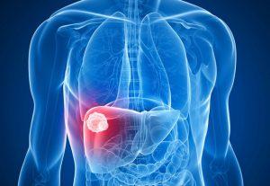 phát hiện bệnh ung thư gan