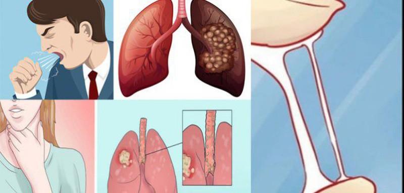 dấu hiệu của ung thư phổi