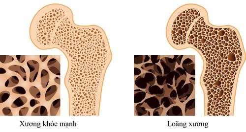 hình ảnh loãng xương