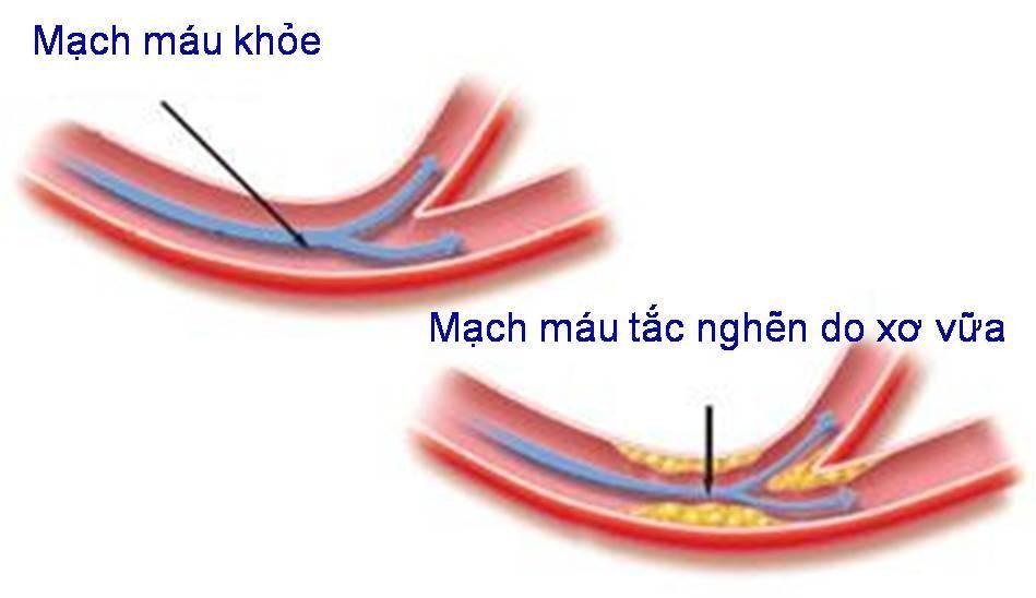Mạch máu khỏe mạnh và mạch máu tắc nghẽn do xơ vữa