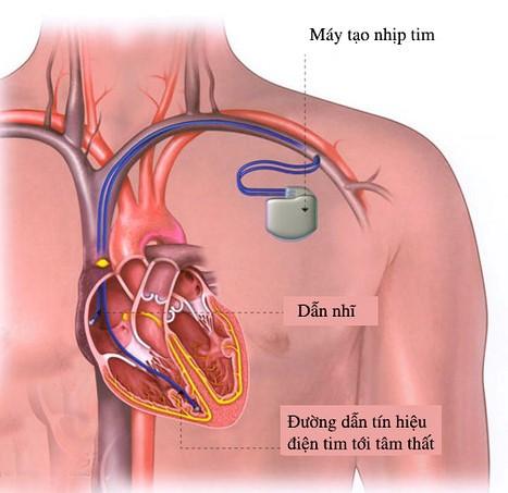Đặt máy tạo nhịp điều trị rối loạn nhịp tim.