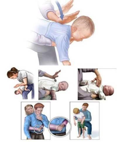 trẻ em bị dị vật đường thở