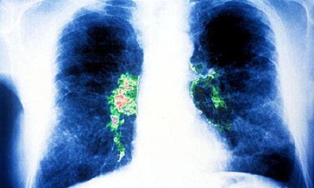 Hình ảnh viêm phổi