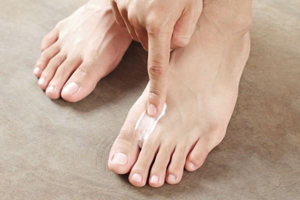 điều trị nấm chân