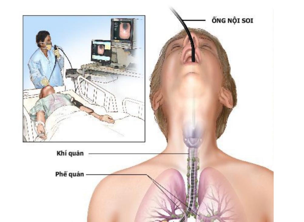 Hình ảnh nội soi phế quản ống mềm