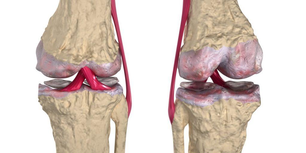 Thoái hóa xương khớp