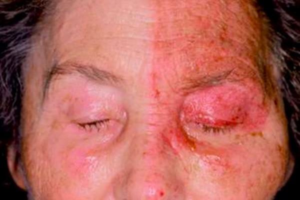 Bệnh zona thần kinh trong hoặc xung quanh mắt