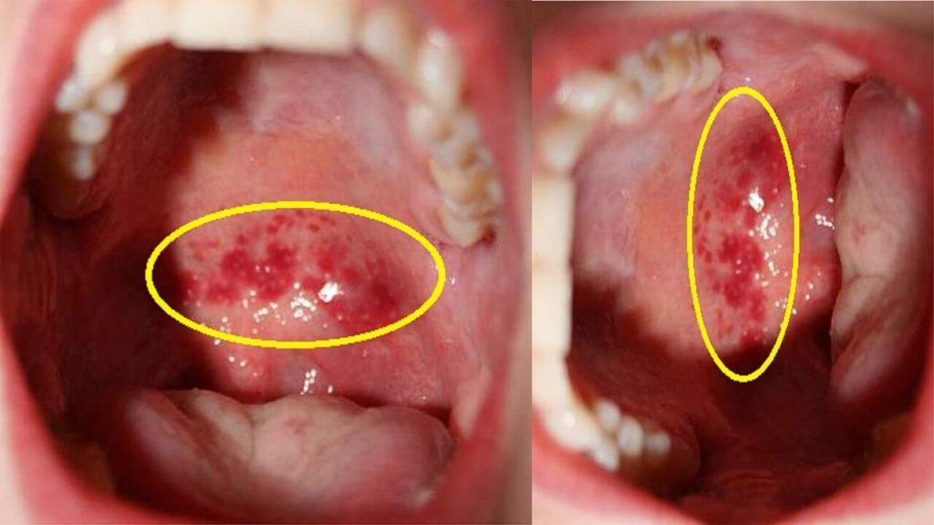 Viêm họng hạt