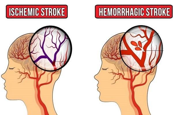 Đột quỵ (trái) và cơn thiếu máu não thoáng qua (phải)