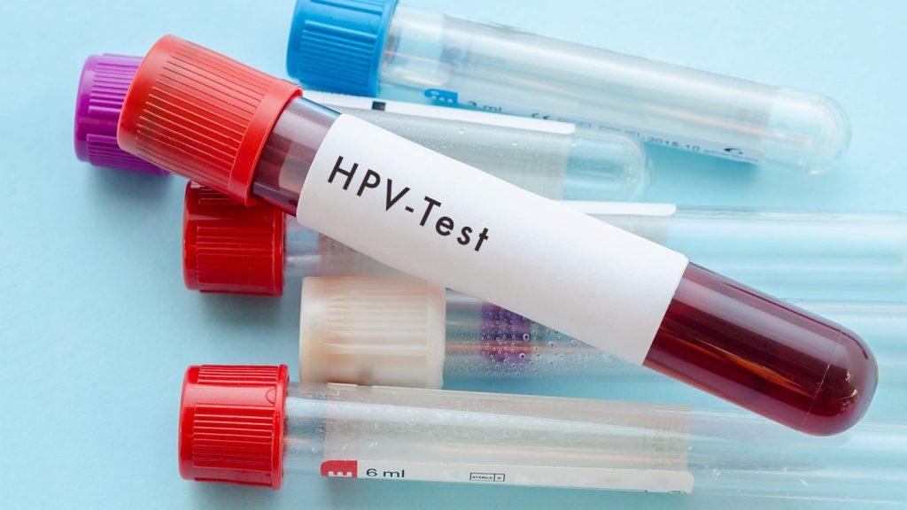 Xét nghiệm HPV