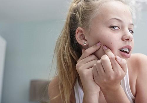 Nặn mụn có thể gây ra sẹo