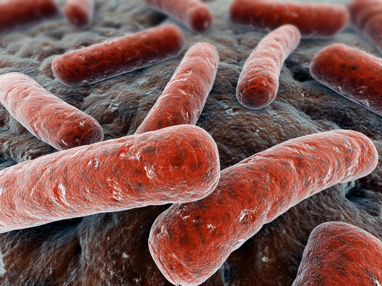 vi khuẩn lao xương