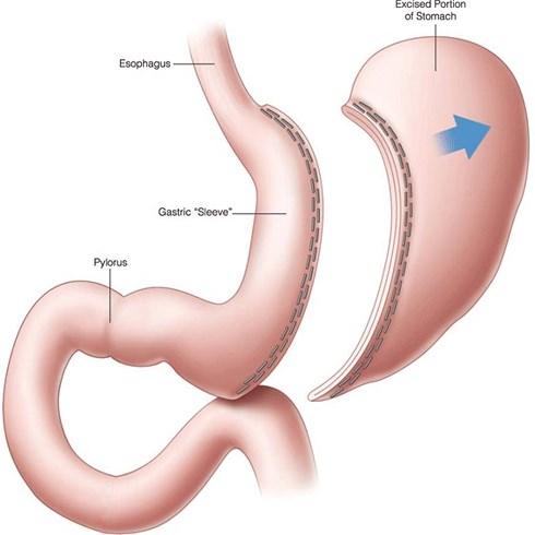 phẫu thuật cắt dạ dày