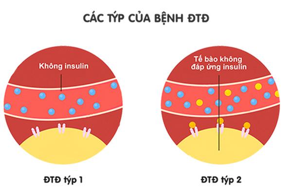tiều đường có di truyền không