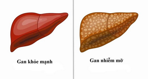 bệnh gan nhiễm mỡ