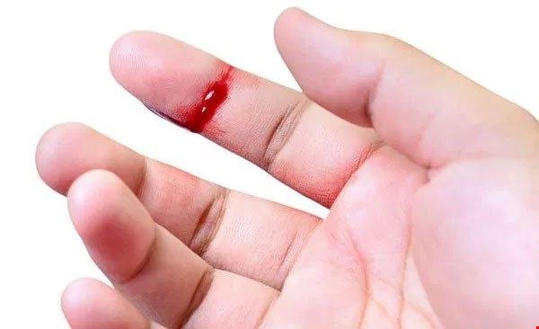 máu khó đông