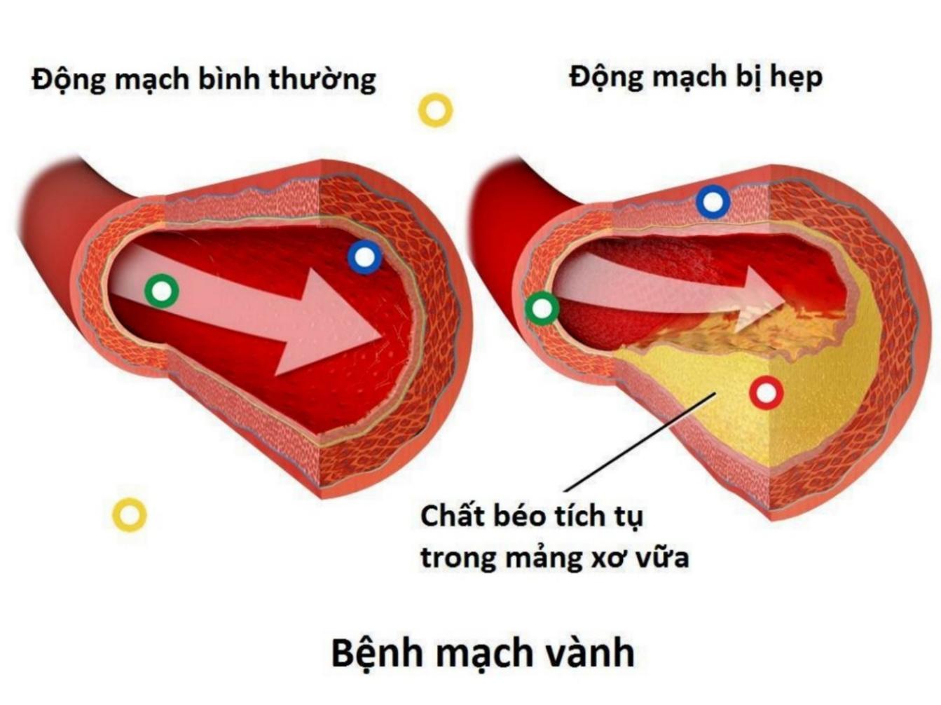dấu hiệu của bệnh tim