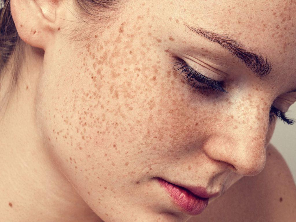 tăng sắc tố da