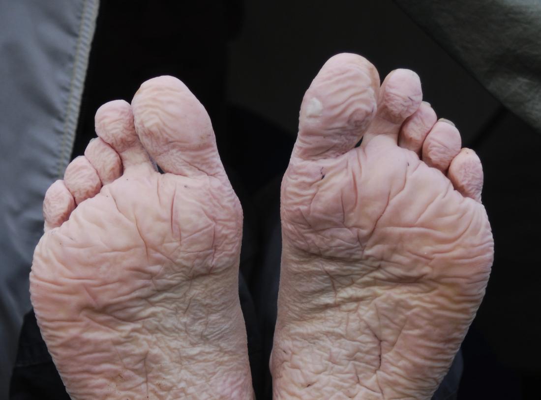 giữ ẩm bàn chân
