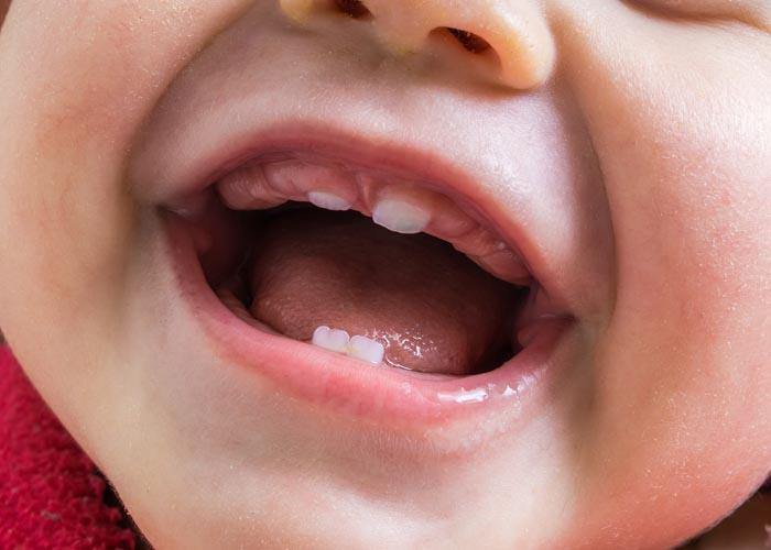 thứ tự mọc răng sữa
