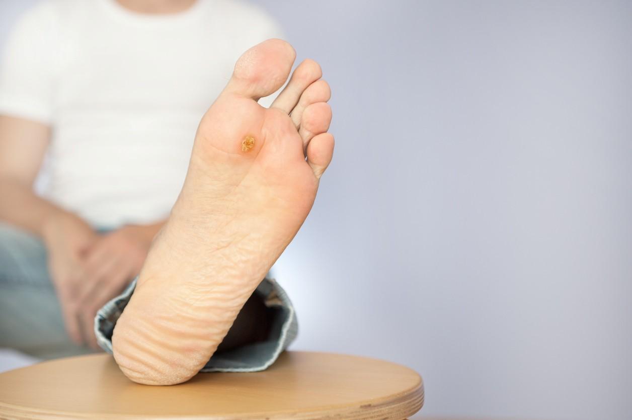 biến chứng bàn chân của bệnh đái tháo đường