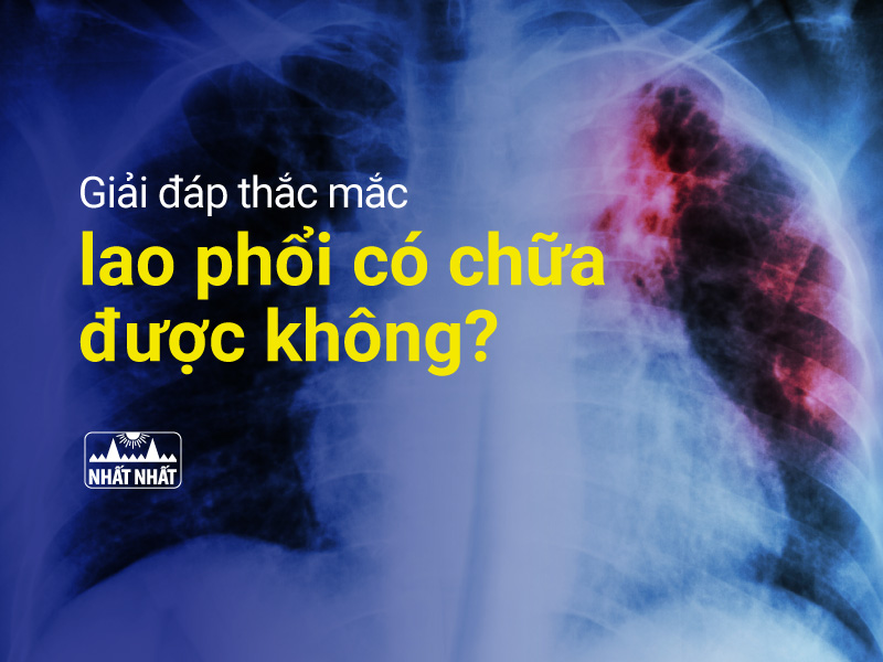 bệnh lao phổi có chữa được không