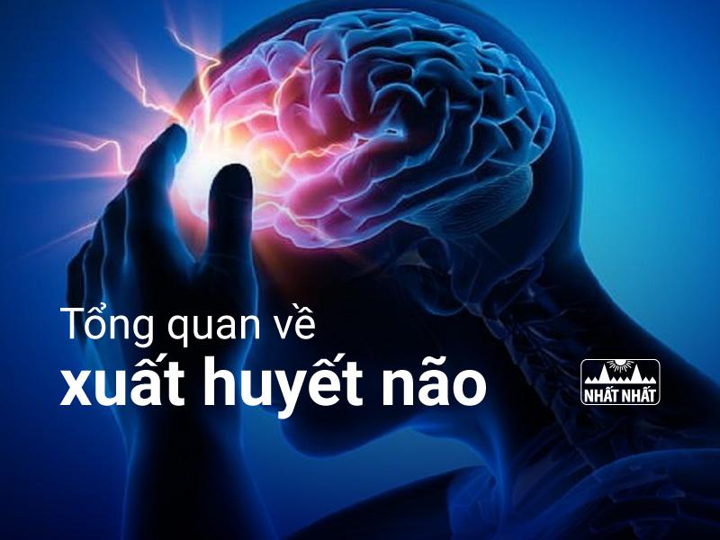 xuất huyết não