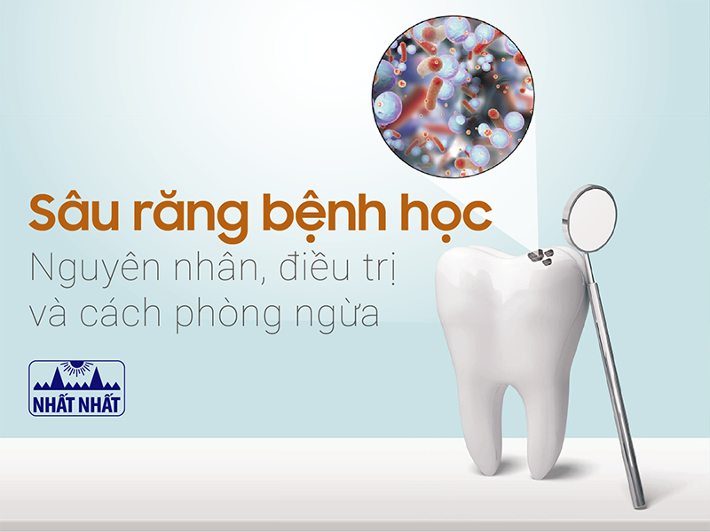 sâu răng bệnh học