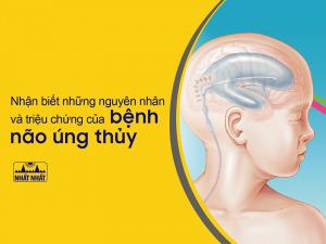bệnh não úng thủy
