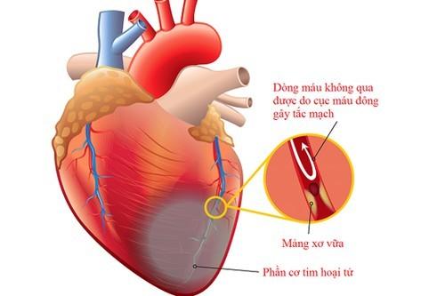 Đau ngực trái khi hít thở