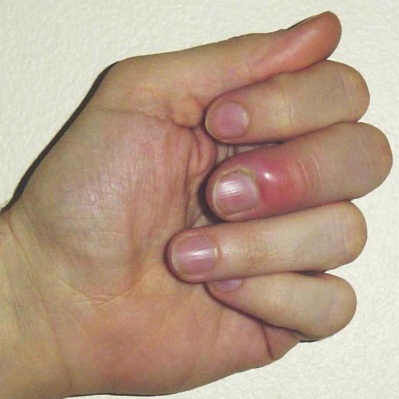 ngón tay bị chín mé