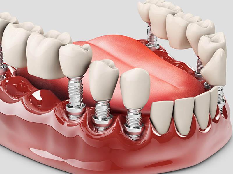 răng giả
