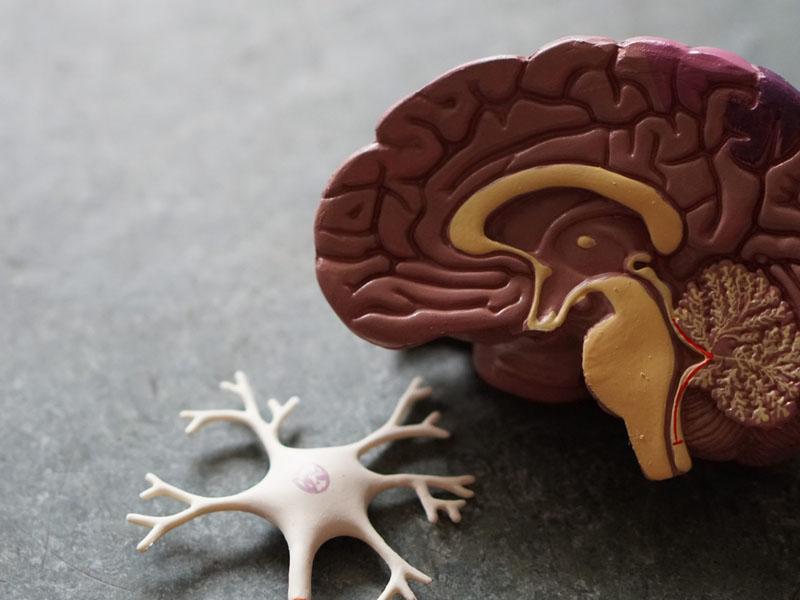 thông tin chung về bệnh Alzheimer