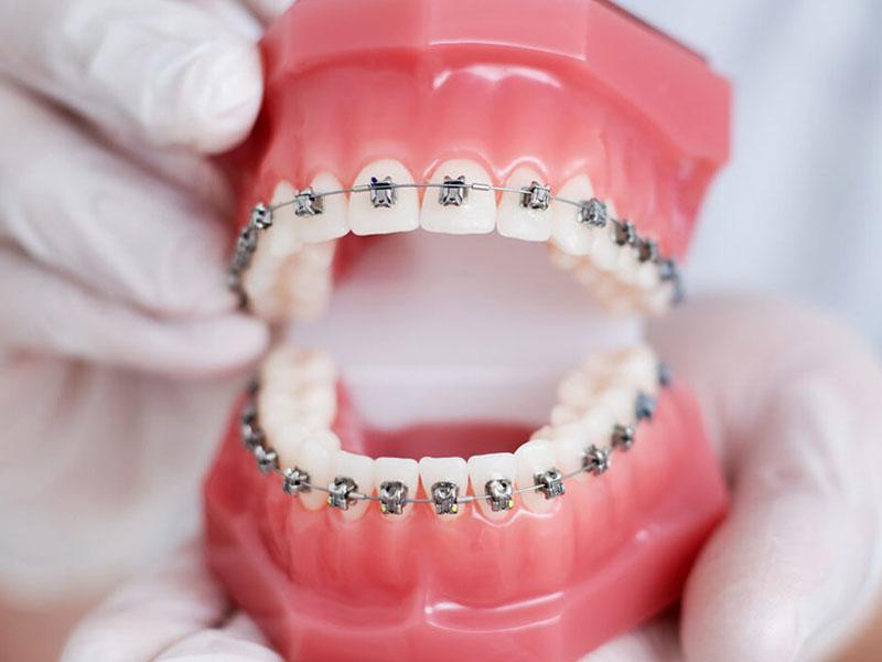 nguyên nhân gây chảy máu chân răng